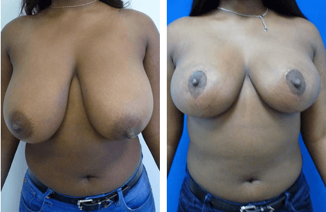 Breast Reduction Philadelphia