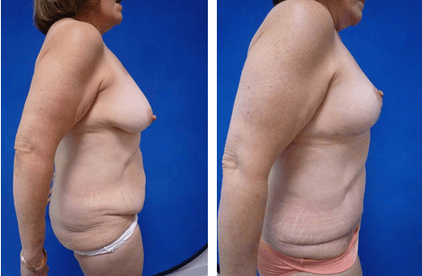 Breast Lift Philadelphia Mastopexy Plymouth Meeting