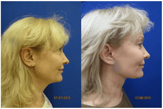 Facelift before after Philadelphia