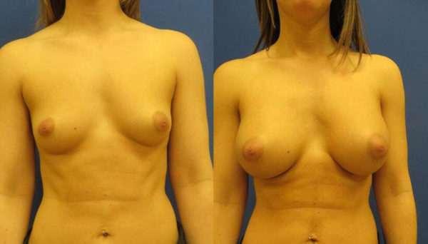 How Much Does Breast Augmentation Cost Plymouth Meeting